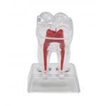 Modell Zahn
